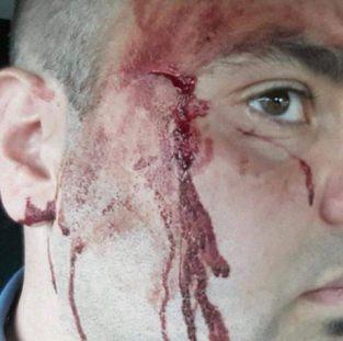 carabiniere ferito